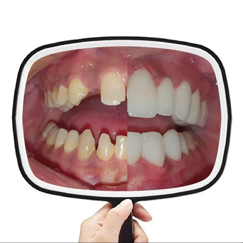 PHOTO 2021 06 25 13 30 06 2 | Los Algodones Dentists