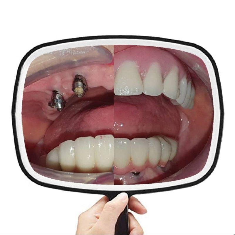PHOTO 2021 06 25 13 30 11 | Los Algodones Dentists